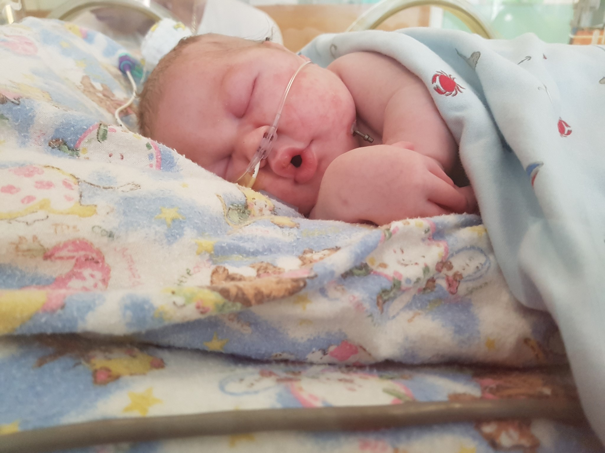 Codie without the breathing tube