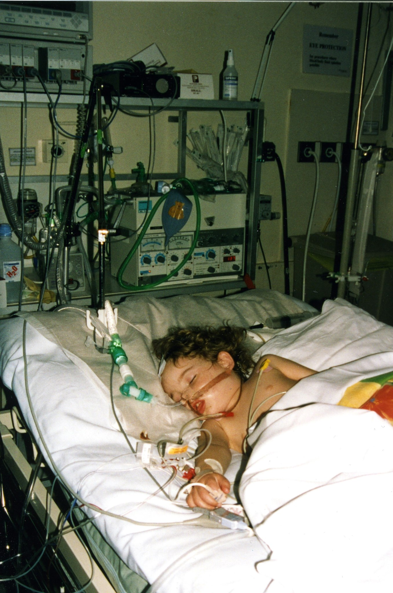 Kara in Intensive Care - so many wires and tubes.