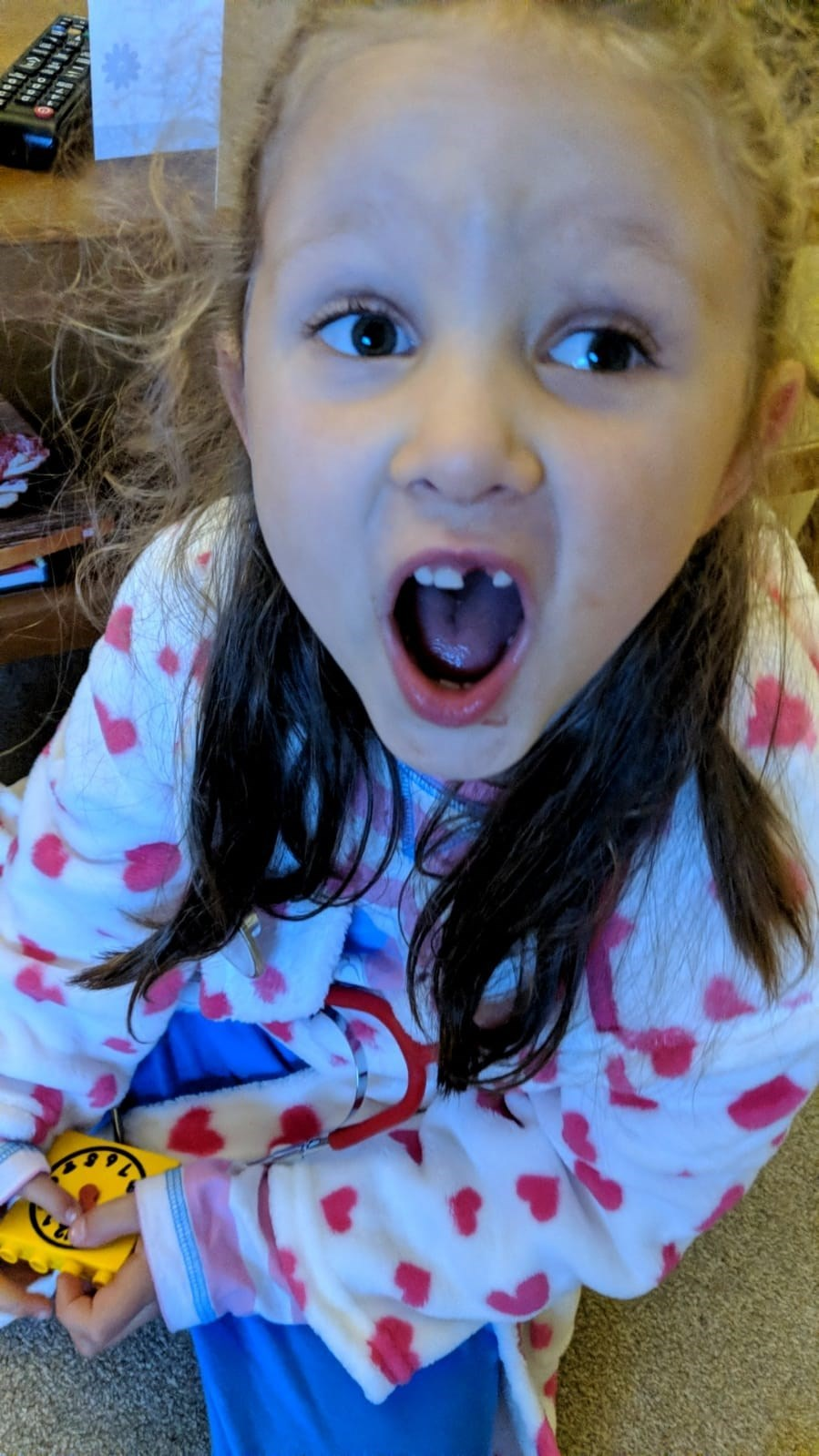 Losing your 1st tooth